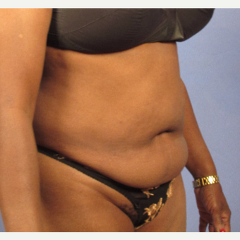 55-64 year old woman treated with Tummy Tuck before 3095827