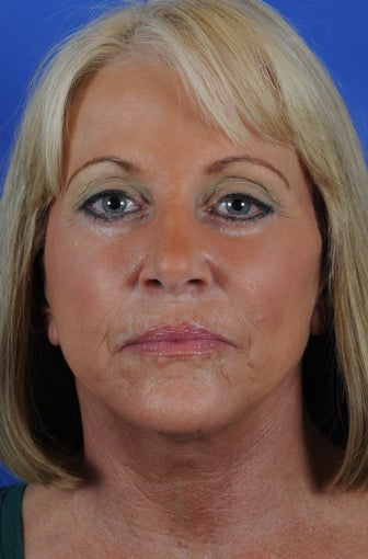 Procedures: Full Face - Neck Lift, Submentoplasty, Lower Blepharoplasty, Fat Transfer to Cheeks, Periorbital and Perioral after 1034723