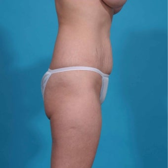 45-54 year old woman treated with Mini Tummy Tuck before 2643727