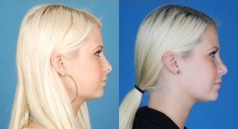 Revision Rhinoplasty - Correction of Alar Malposition, Internal Valve Collapse, Tipplasty after 677065