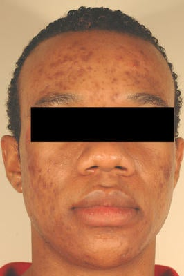 Laser Acne Scar Removal before 82959