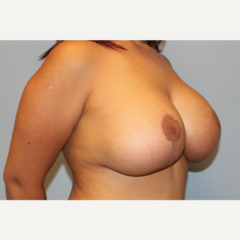 25-34 year old woman treated with Breast Lift with Implants after 3537327