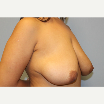25-34 year old woman treated with Breast Lift with Implants before 3537327