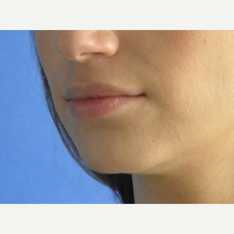 35-44 year old woman treated with Lip Augmentation before 3240238