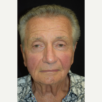 77-year-old man treated with Bellafill after 3248874