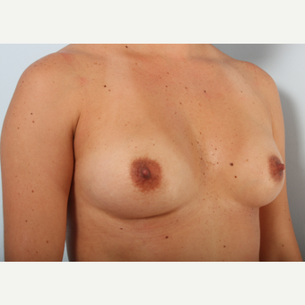 Breast Augmentation before 3425464