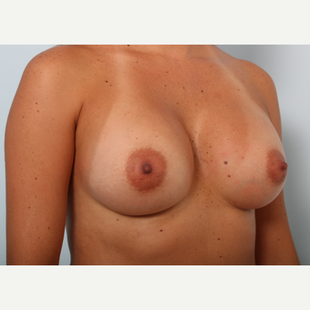 Breast Augmentation after 3425464