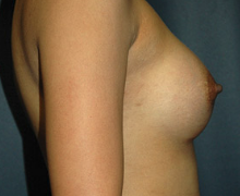 Breast Implants after 3545157