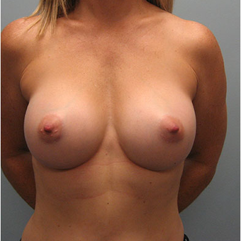45 year old woman treated with Breast Augmentation after 3468374