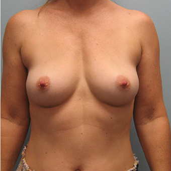 45 year old woman treated with Breast Augmentation before 3468374