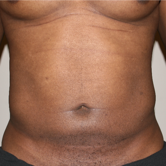 35-44 year old man treated with Liposuction after 3141970