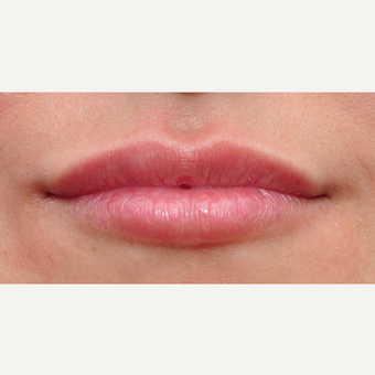 25-34 year old woman treated with Lip Augmentation after 3650314