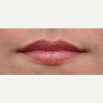 25-34 year old woman treated with Lip Augmentation before 3650314