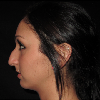 18-24 year old woman treated with Rhinoplasty before 3838373
