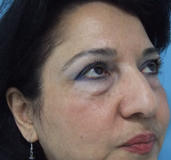 45-54 year old woman treated with Rhinoplasty before 3826205