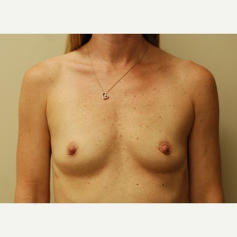 35 year old woman treated with Breast Augmentation before 1938211