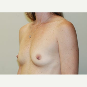 35 year old woman treated with Breast Augmentation 1938211