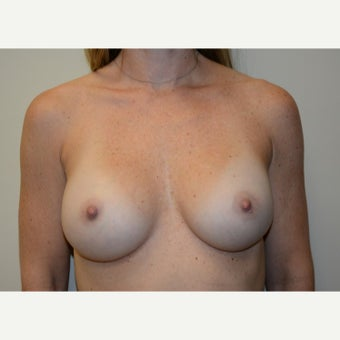 35 year old woman treated with Breast Augmentation after 1938211