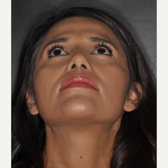 25-34 year old woman treated with Septoplasty 10 days post-op after 3452284