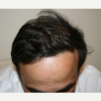 45-54 year old man treated with FUE Hair Transplant after 2810450