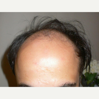 45-54 year old man treated with FUE Hair Transplant before 2810450