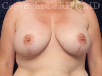 40 year old woman treated with Breast Lift with Implants after 2797379