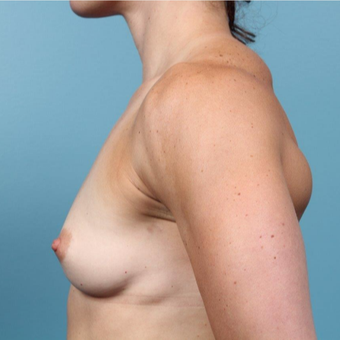 35 year old woman treated with Breast Augmentation before 3149692