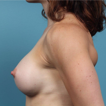 35 year old woman treated with Breast Augmentation after 3149692