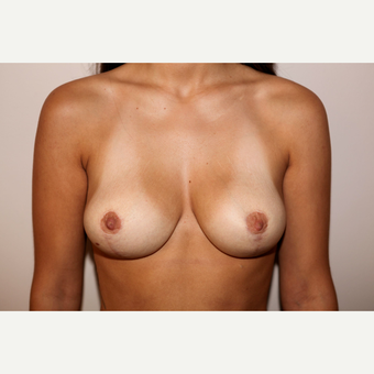 35-44 year old woman treated with Breast Reduction after 3497896