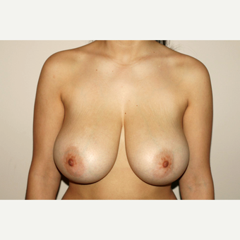 35-44 year old woman treated with Breast Reduction before 3497896