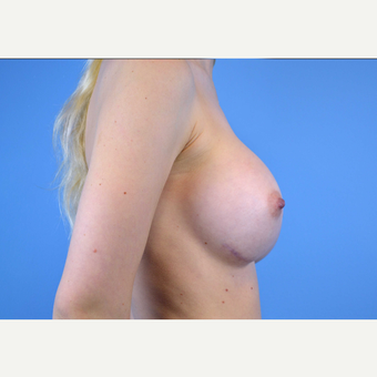 18-24 year old woman treated with Breast Implants after 3439920
