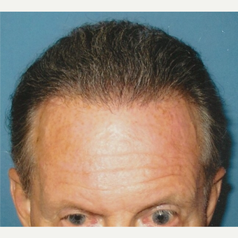 55-64 year old man treated with Hair Transplant after 3494854