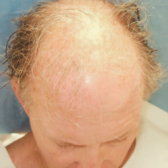 55-64 year old man treated with Hair Transplant before 3494854