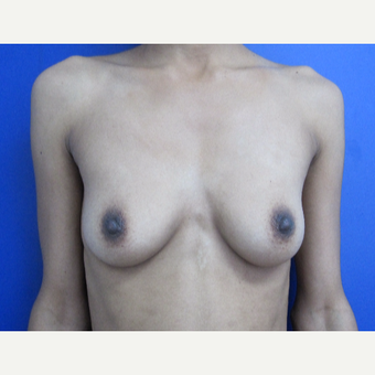 25-34 year old woman treated with breast augmentation before 3181536