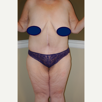 35-44 year old woman treated with Circumferential Tummy Tuck after 3500162