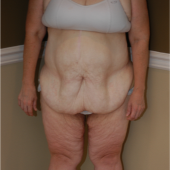 35-44 year old woman treated with Circumferential Tummy Tuck before 3500162
