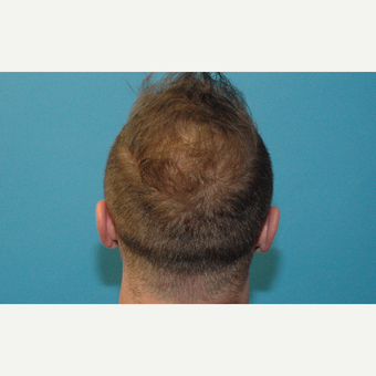 37 year old man treated with NeoGraft hair transplantation after 3241799