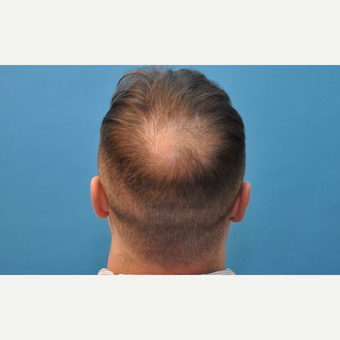 37 year old man treated with NeoGraft hair transplantation before 3241799