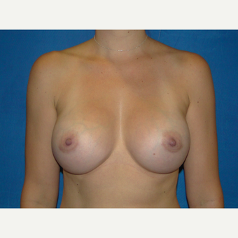 425 cc Silicone Breast Implants after 3623137