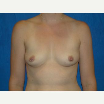 425 cc Silicone Breast Implants before 3623137