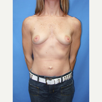25-34 year old woman treated with Breast Implants before 3115258