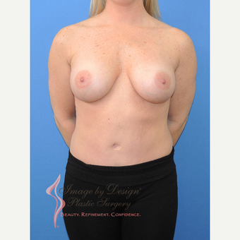 25-34 year old woman treated with Breast Implants after 3115258