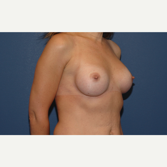 22 year old woman treated with Breast Augmentation after 3200929