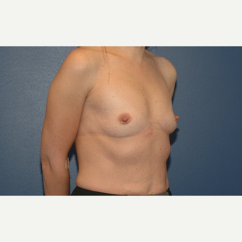 22 year old woman treated with Breast Augmentation before 3200929