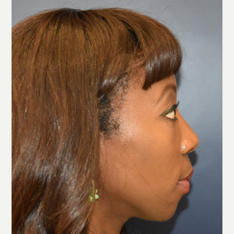 35-44 year old woman treated with Nose Surgery before 3288978