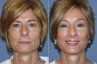 53yo Dr Mark Prysi performed Endoscopic Browlift, Endoscopic Composite Faclift and Laser Resurfacing  before 1245712