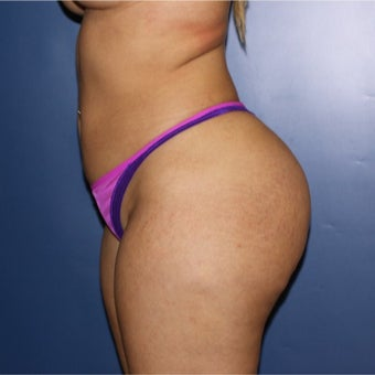 18-24 year old woman treated with Brazilian Butt Lift after 2523837