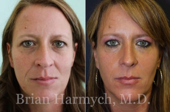 39 year-old female before and 9 months after Rhinoplasty before 3447123