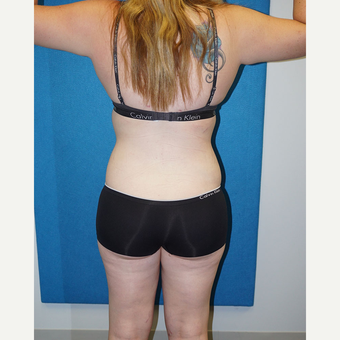 17 year old woman treated with Liposuction