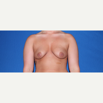 18-24 year old woman treated with Breast Augmentation before 3769811